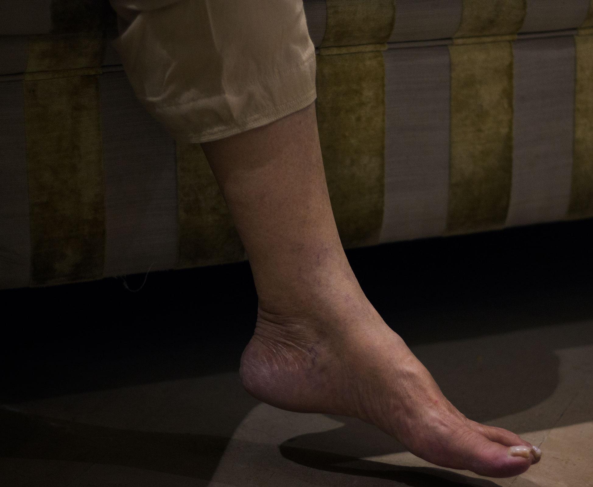 Hanging foot & her